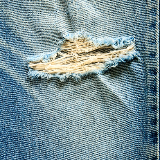 7 Simple Fixes for Clothing Damage